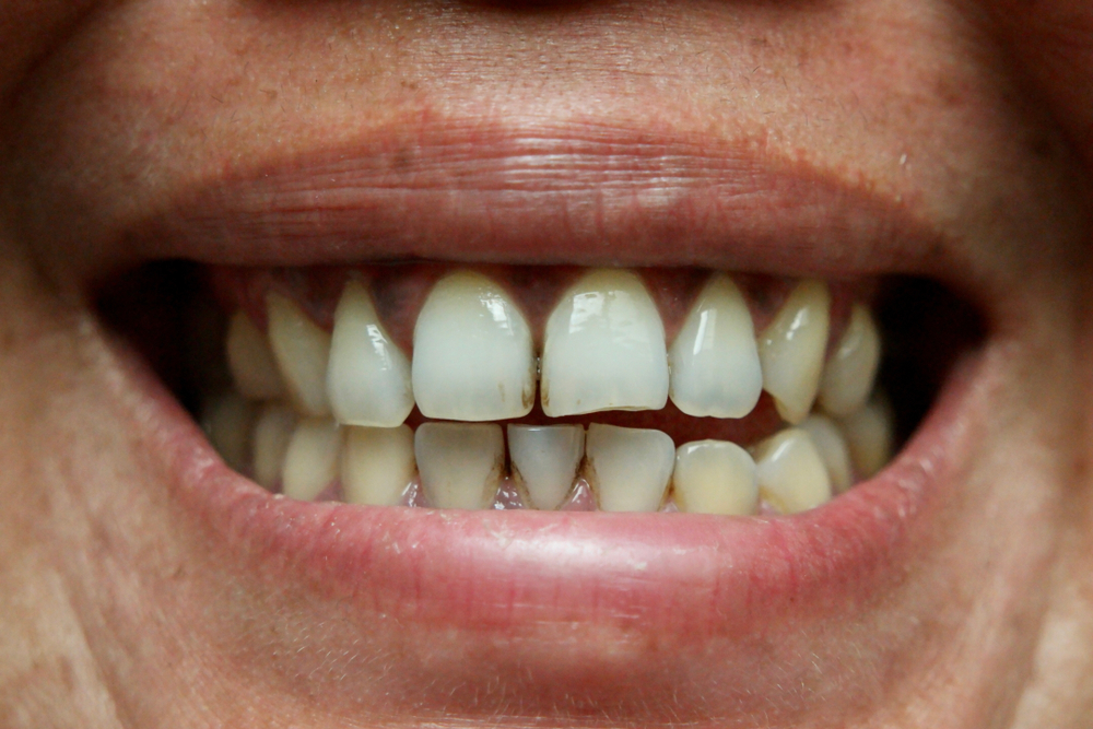 Stained teeth can be due to poor oral hygiene as well as food and lifestyle choices.